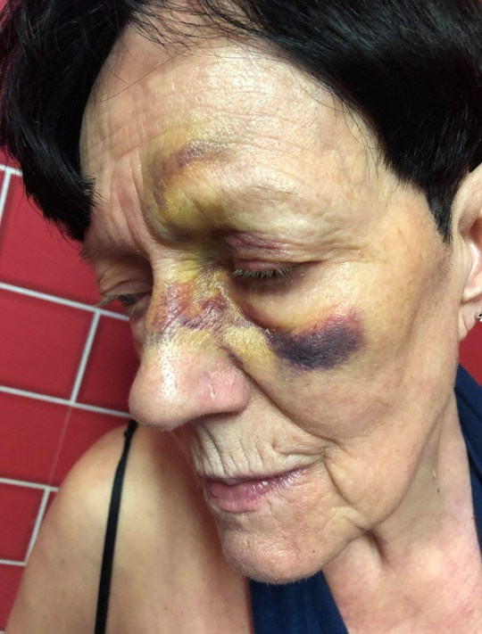 """A 74-year-old woman left """"black and blue"""" after falling over a loose paving stone in Coventry city centre has called on the council to act now before others are hurt. Hazel Broadhurst, from Keresley, broke her wrist in two places and is still suffering the effects of a concussion after the nasty tumble on Friday night. She had been walking to the Skydome cinema with her grandson when she tripped over a loose brick in the pavement on Smithford Way near to the Marks & Spencer store."""