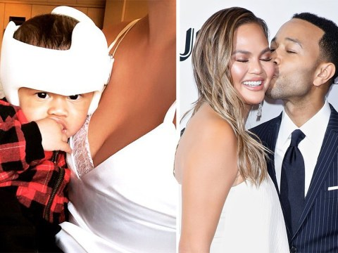 Chrissy Teigen's son Miles looks adorable as he rocks helmet 'to correct his misshapen head'