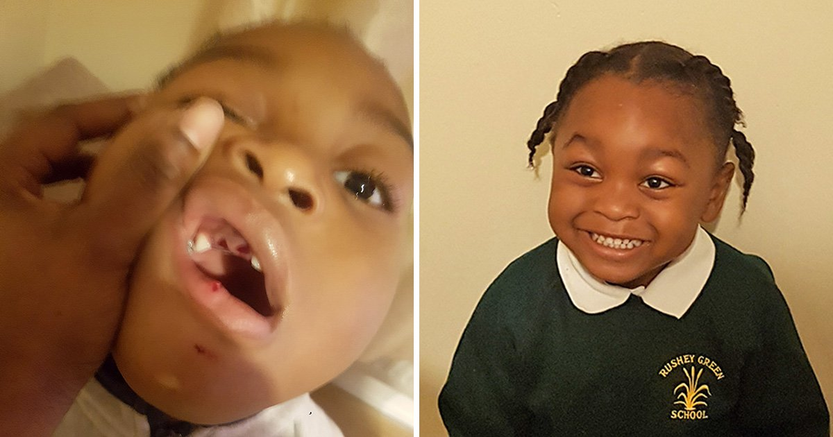 Mum claims nursery gave son crackers instead of Calpol when he fell and knocked out his teeth