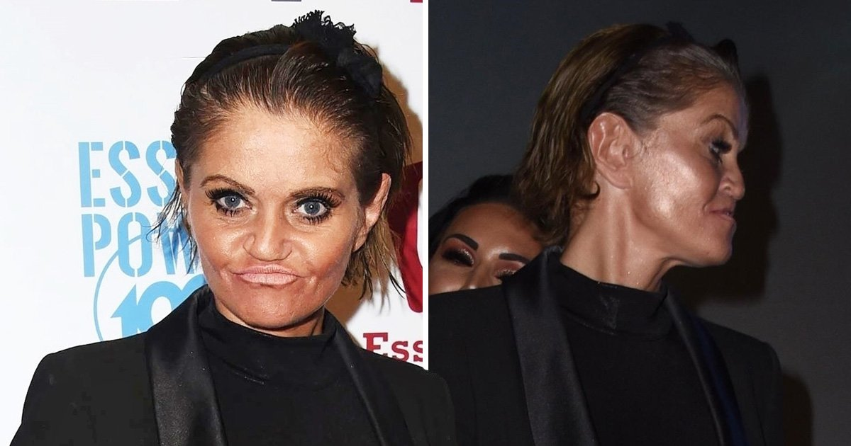 Danniella Westbrook is all smiles after starting reconstructive surgery to replace 'sunken face'