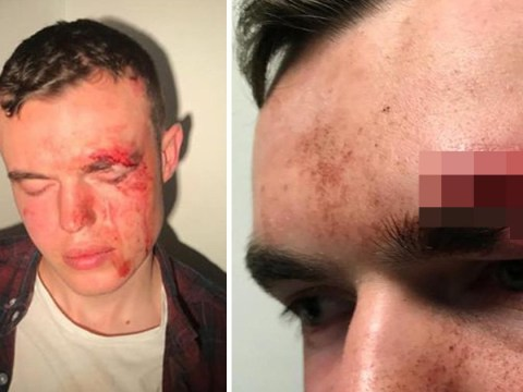Double amputee 'dragged out of club and knocked unconscious by bouncer'
