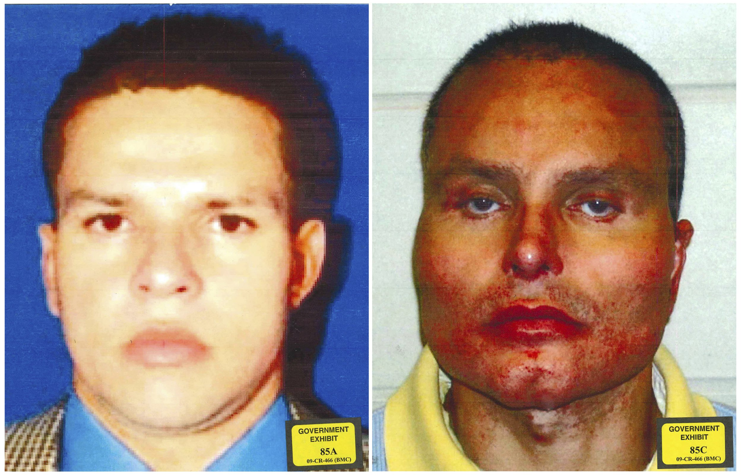 """This combination of undated photos provided by the U.S. Attorney's Office for the Southern District of New York shows former Colombian drug lord Juan Carlos Ramirez Abadia. The latest star witness for the government in the trial against accused drug lord Joaquin """"El Chapo"""" Guzman has been more notable for his appearance than his testimony. Ramirez Abadia told the jury that he had at least three surgeries to change his appearance. The photo at left shows Ramirez Abadia prior to his surgeries and the photo at right is post-surgery. (U.S. Attorney's Office for the Southern District of New York via AP)"""