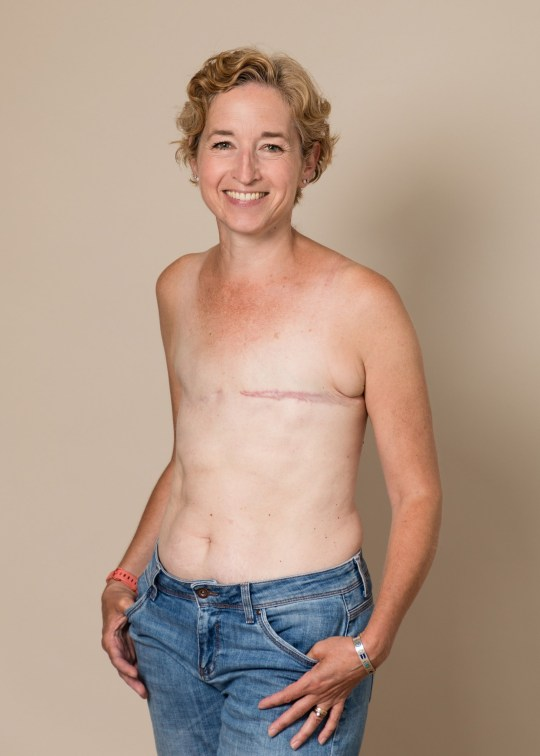 Mum Embraces Her Mastectomy Scars After Surviving Cancer