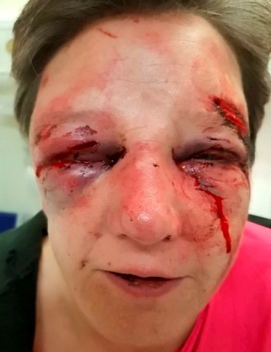 The horrific facial injuries suffered by a 50-year-old woman during a violent robbery at an address in Walgrave Village, Northamptonshire..See SWNS story SWMDbatter.. An image showing the shocking injuries suffered by a 50-year-old woman during a violent robbery have been released in a bid to catch the offender.The significant injuries included a broken nose and broken jaw during what is believed to have been a robbery at an address in Old Road, Walgrave Village.The incident happened sometime between 2.30pm and 4.30pm, on Wednesday, December 5, where items of jewellery were taken.The jewellery included a pair of ruby earrings, pictured, and a silver watch.