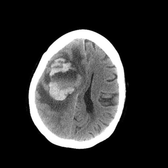An MRI of the Seattle woman???s brain in January 2018. Doctors initially thought the ringed lesion on the left was a tumor, because the woman had a history of breast cancer.