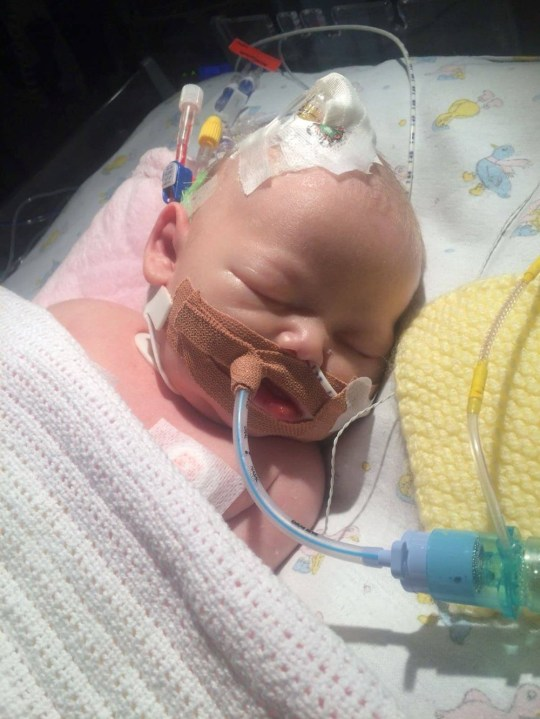 Kiara in hospital at 13 days old (PA Real Life/Collect)