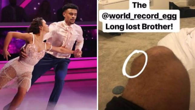 Wes Nelson dancing with partner Vanessa Bauer and picture of his injured knee