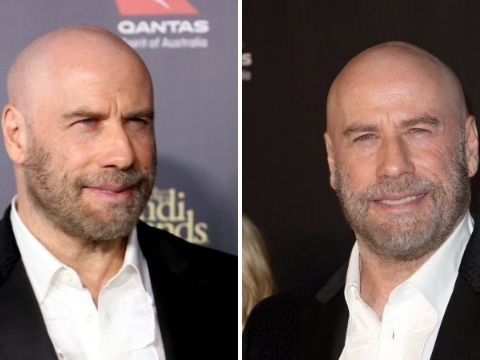 John Travolta is unapologetic as he debuts bald head on red carpet after years of wearing wigs