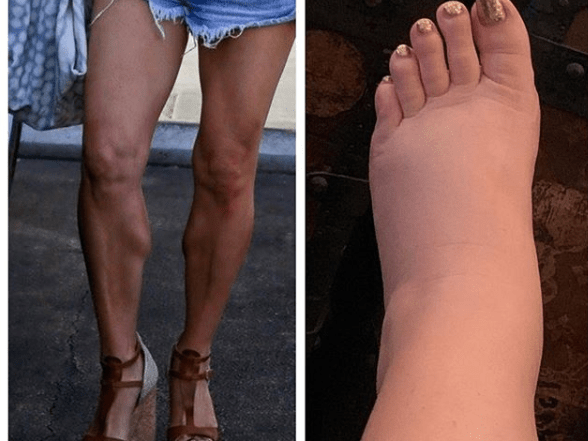 Jessica Simpson just made her swollen pregnancy feet a meme and you've got to love her for it