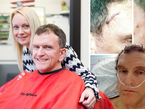 Hairdresser saves man's life after spotting cancerous mole on his head