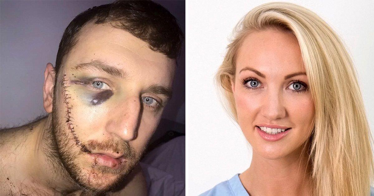 Apprentice winner Dr Leah offers to help Everton fan whose face was slashed
