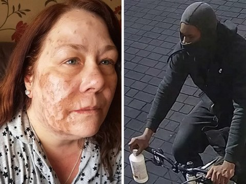 Acid victim's family say police 'let attacker slip through the net'