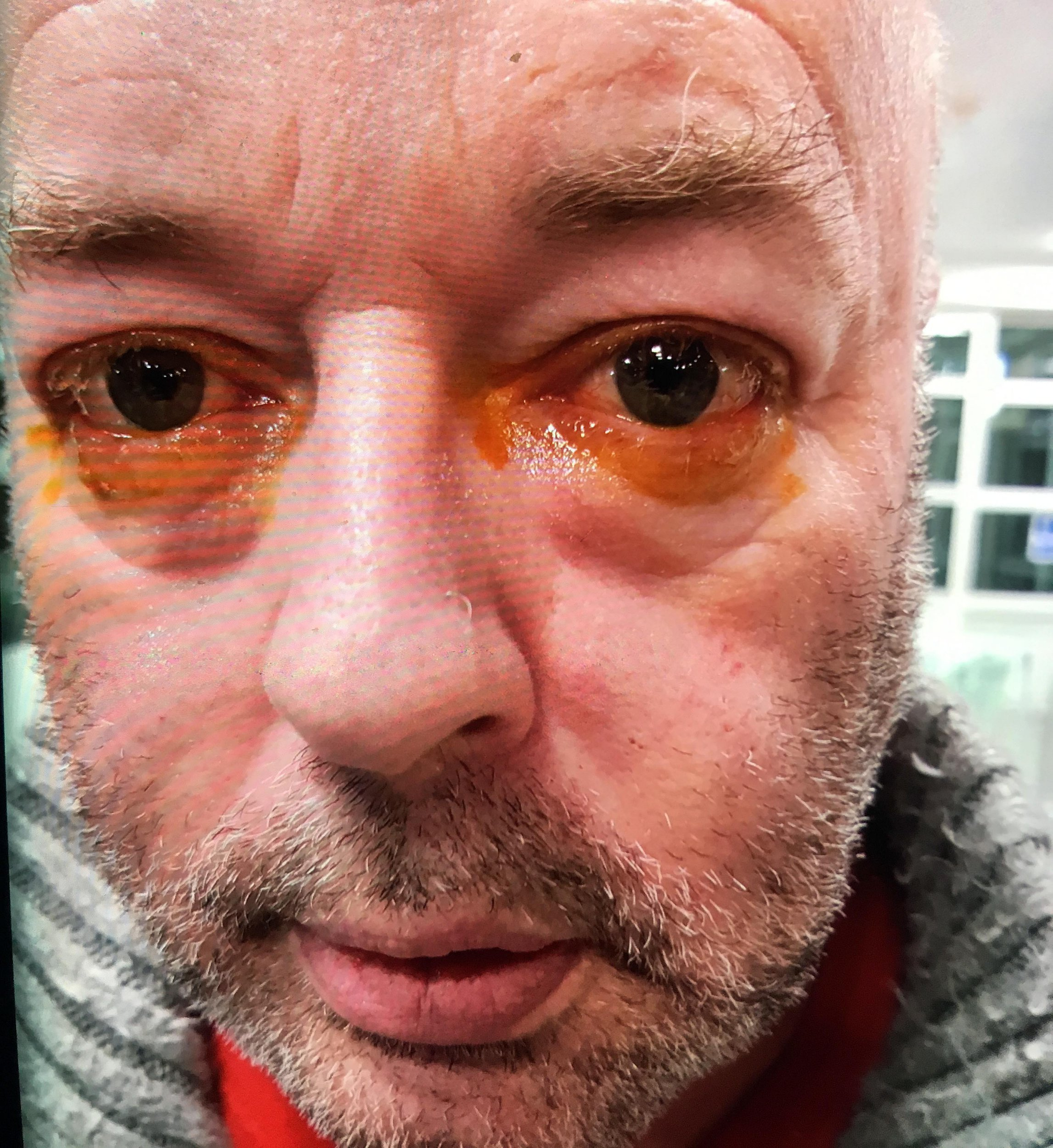 Andy Fisher from Sutton Coldfield, is pictured after claiming he had cleaning fluid sprayed in his eyes whilst complaining about his meal in the Toby Carvery in Sutton Coldfield.. Credit: BPM Media
