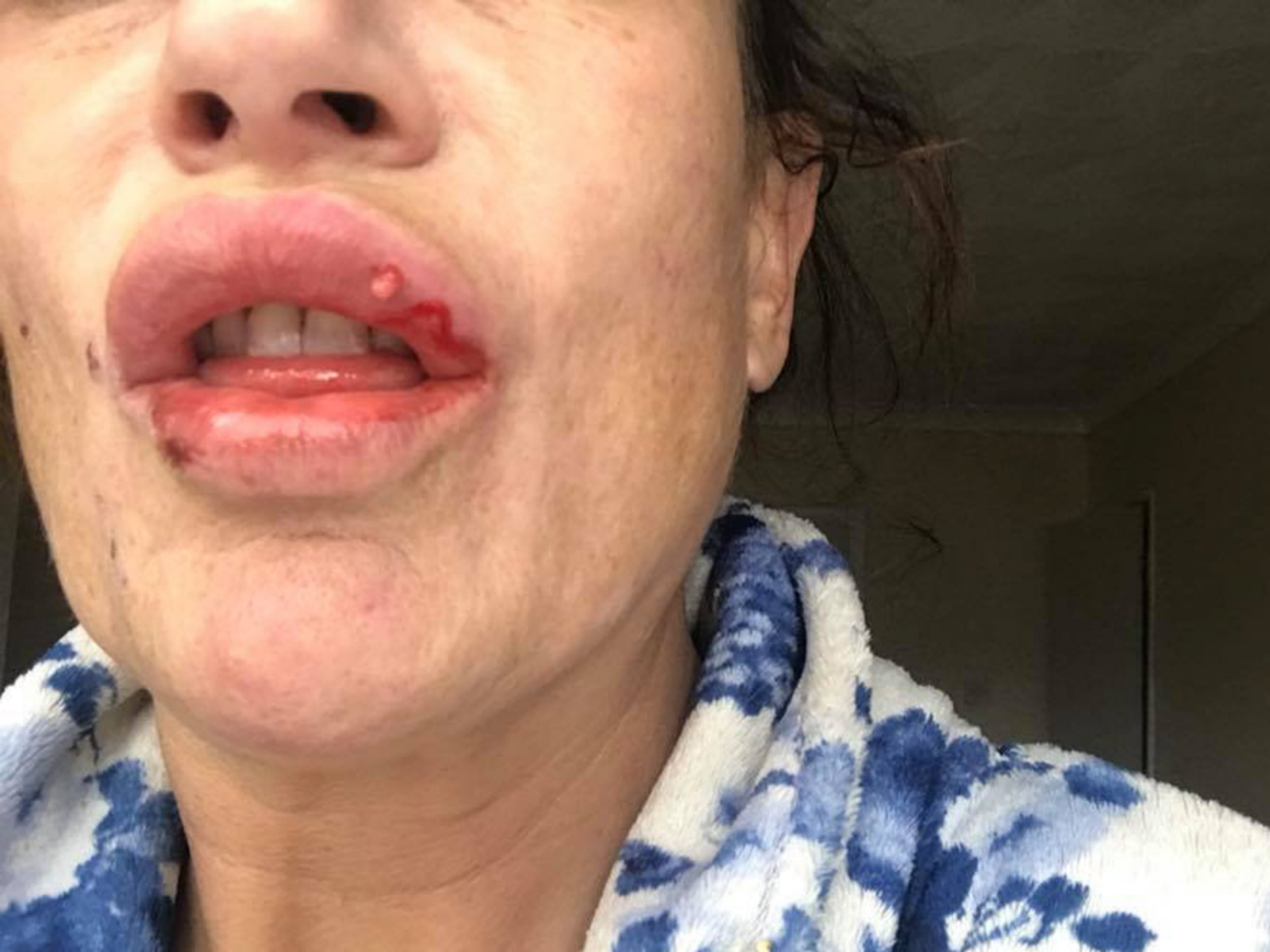 MERCURY PRESS. 17/01/19. Pictured: Tracy Bates, 44, after the lip filler went horribly wrong. A mother-of-three has issued a lip filler warning after the surgery left her lips covered in sores and scars. After having lip fillers numerous times before, Tracy Bates, 44, decided to get a 2ml top up to keep her lips full. However, days after spending the ?140 to get both lips enhanced, Tracy noticed that her lips were more swollen and bruised than usual. SEE MERCURY COPY