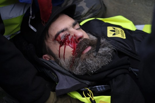 """Mandatory Credit: Photo by Alfred Photos/SIPA/REX (10074593a) Jerome Rodrigues, one of the leaders of the the Yellow Vests """"Gilets Jaunes' movement seriously injured in the eye by a projectile, likely grenade shrapnel 'Gilets Jaunes' protests, Paris, France - 27 Jan 2019"""