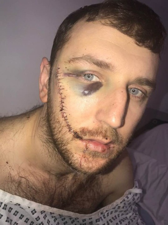Everton fan slashed face. A football fan has shared a picture of the horrendous scar he was left with after he was slashed across the face during a brawl between Millwall and Everton fans. Jay Burns.