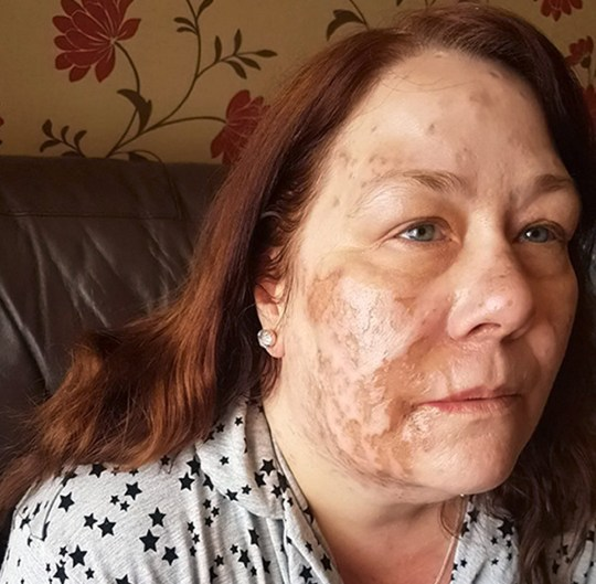 Rex Features Ltd. do not claim any Copyright or License of the attached image Mandatory Credit: Photo by REX/Shutterstock (9775652p) Joanne Rand, 47, who died 11 days after having acid thrown over her. She is pictured here showing her facial scars after the acid attack. Man jailed over fatal acid attack, UK - 31 Jul 2018 Joanne Rand, 47, who died 11 days after having acid thrown over her. Her attacker, Xeneral Webster, 19, has been jailed for 17 years today for throwing acid at Joanne Rand, who was sitting on a bench in Frogmoor, High Wycombe, after visiting her daughter's grave when she was hit by Webster with acid. Webster, of Westway, west London, had admitted manslaughter during his murder trial at Reading Crown Court.Prosecutors said the case was the first acid killing in the UK. Webster was arguing with another man in High Wycombe when he took out a bottle of acid which splashed Joanne Rand head-to-toe. The trial heard Ms Rand screamed in pain and ran to a nearby restaurant to douse herself with water after being splashed with the sulphuric acid.The mother-of-three was treated in hospital and was discharged but died on 14 June last year from multi-organ failure after contracting septicaemia.