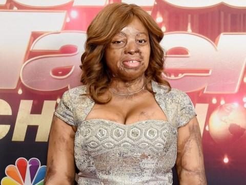 America's Got Talent: Simon Cowell's Golden Buzzer act Kechi Okwuchi considering taking up surgery offers