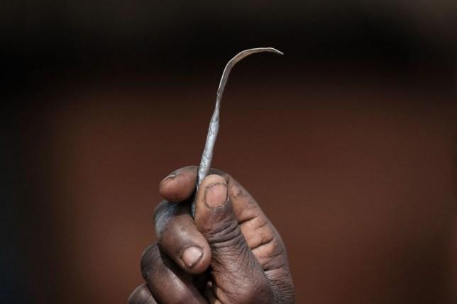 FGM, female genital mutilation, Female circumcision, International Day of Zero Tolerance to FGM