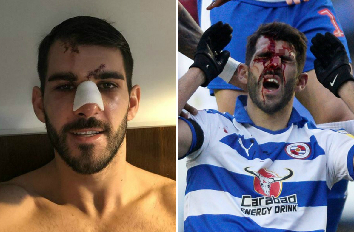 Nelson Oliveira calls on FA to investigate Tyrone Mings stamp and says he was almost blinded