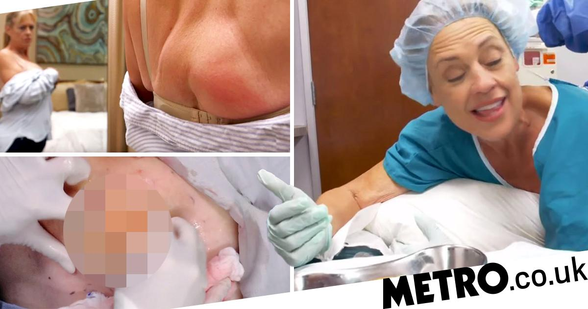 Dr Pimple Popper Removes Yellow Gunk From Client S Butt