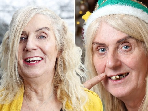 Lotto winner spends £42,000 on new teeth that took nine hours to perfect