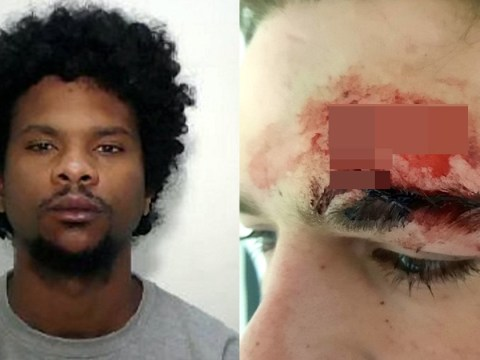 Soldier almost lost an eye after being hit with broken bottle