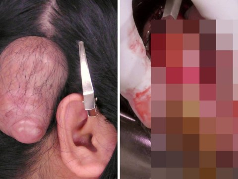 Dr. Pimple Popper squeezes 'biggest cyst ever' as yellow pus darts out and honestly this is NSFW