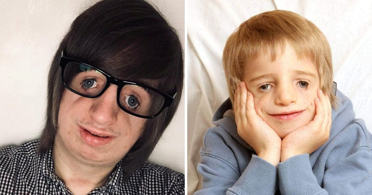 Teenager with facial deformity is looking for a girlfriend