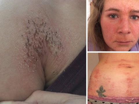 Woman's skin fell off and broke out in huge blisters after it became addicted to eczema cream