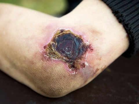 What is krokodil and what effect can the drug have on someone?