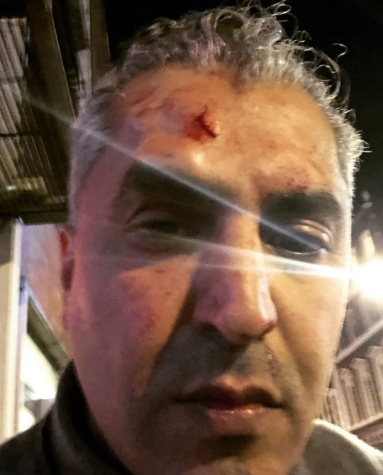 METRO GRAB - taken from the Twitter of Maajid NawazRadio presenter Maajid Nawaz attacked by 'racist' outside Soho theatreCredit: Maajid Nawaz