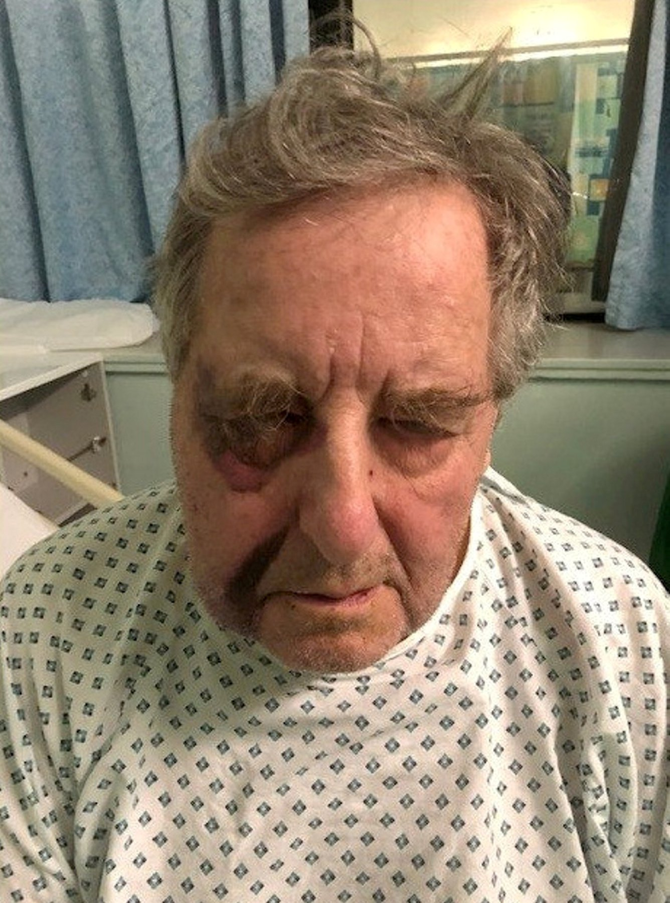Officers have released this photograph of a pensioner?s injuries following an aggravated burglary in Stapleford on 12 February 2019. See SWNS story SWMDbatter; At around 8pm two males forced their way into the house in the Windsor Street area and threatened the 78-year-old victim with a knife, before ransacking the house and taking a quantity of cash and a bank card. During the incident, the man was also hit in the face and lost consciousness. He wasn?t found until the next day, when his older sister visited him, and is still receiving medical treatment, although his injuries are not thought to be life-threatening or life-altering.