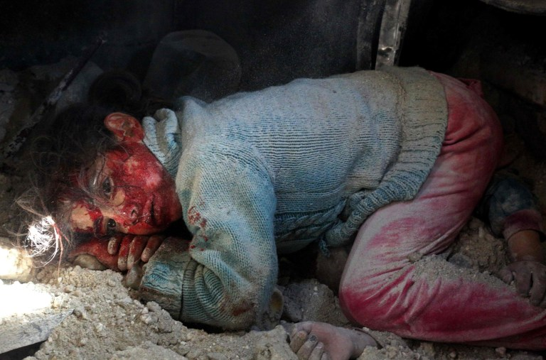 EDITORS NOTE: Graphic content / A wounded Syrian girl awaits rescue from under the rubble next to the body of her sister (hands seen-R) who did not survive regime bombardment in Khan Sheikhun in the southern countryside of the rebel-held Idlib province, on February 26, 2019. - Regime bombardment near Khan Sheikhun, in Idlib province, killed two civilians on Tuesday, raising the civilian death toll to 42 since February 9, the Britain-based Syrian Observatory for Human Rights said. (Photo by Anas AL-DYAB / AFP) / ADDITION: Adding information to the caption of this photo by Anas AL-DYAB to clarify that the body behind the wounded girl is of her sister who did not survive the bombardment and was later removed from under the rubble dead, according to eye witnesses. Please modify the information in all your online services and if you have been authorized by AFP to distribute it (them) to third parties, please ensure that the same actions are carried out by them. Thank you very much for all your attention and prompt action. We are sorry for the inconvenience this notification may cause and remain at your disposal for any further information you may require.ANAS AL-DYAB/AFP/Getty Images