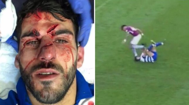 Reading's Nelson Oliveira's facial injuries and the stamp that happened during Aston Villa match