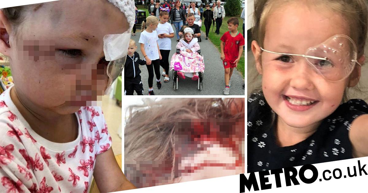 Owner tried to blame girl, 4, after she was savaged by her dog and won't apologise