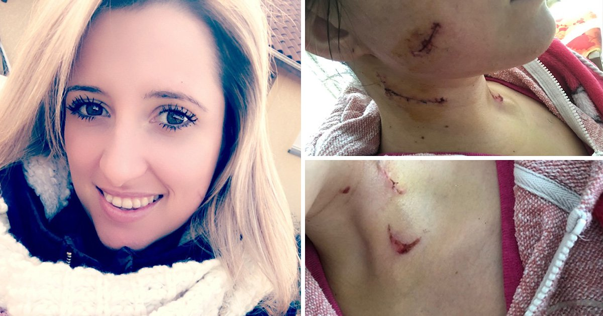 Woman stabbed 11 times by stranger would have died without £5 Primark scarf