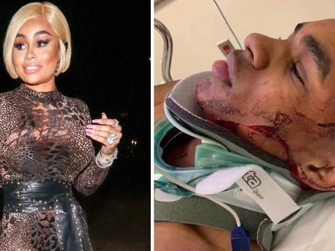 Blac Chyna's ex YBN Almighty Jay beaten up and robbed in live-streamed street fight