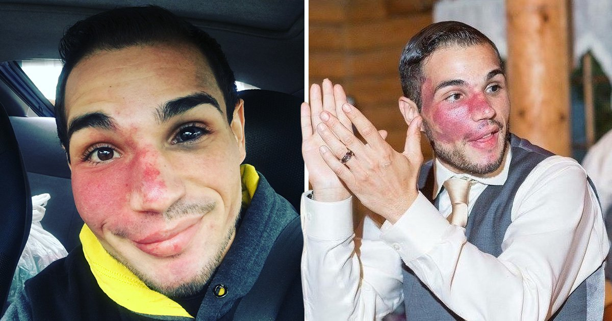 Man who got reported to the police because people thought he was bleeding now shows off his birthmark with pride