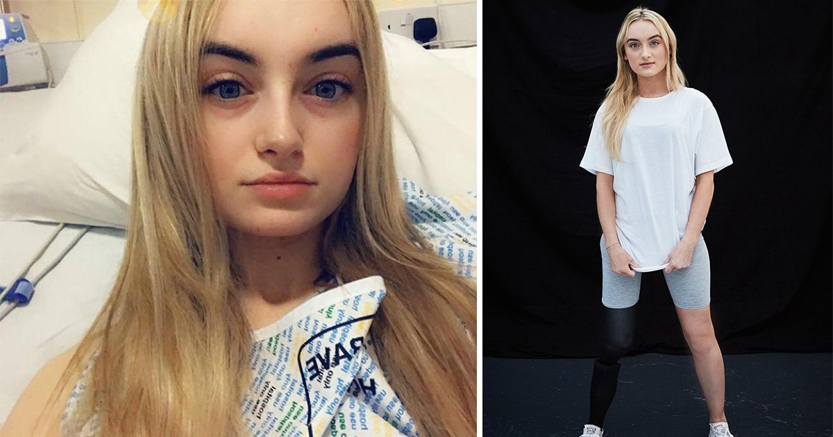 Woman becomes a model after rare cancer led to urgent leg amputation