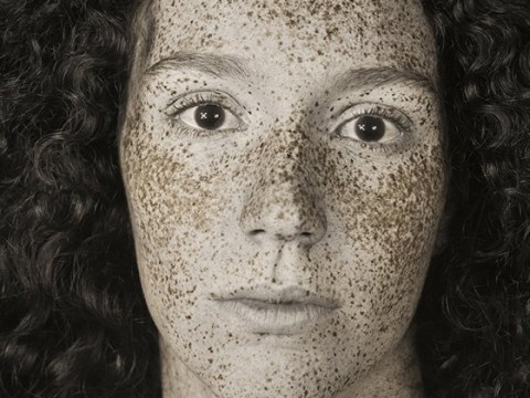Shocking ultraviolet portraits reveal the real extent of sun damage