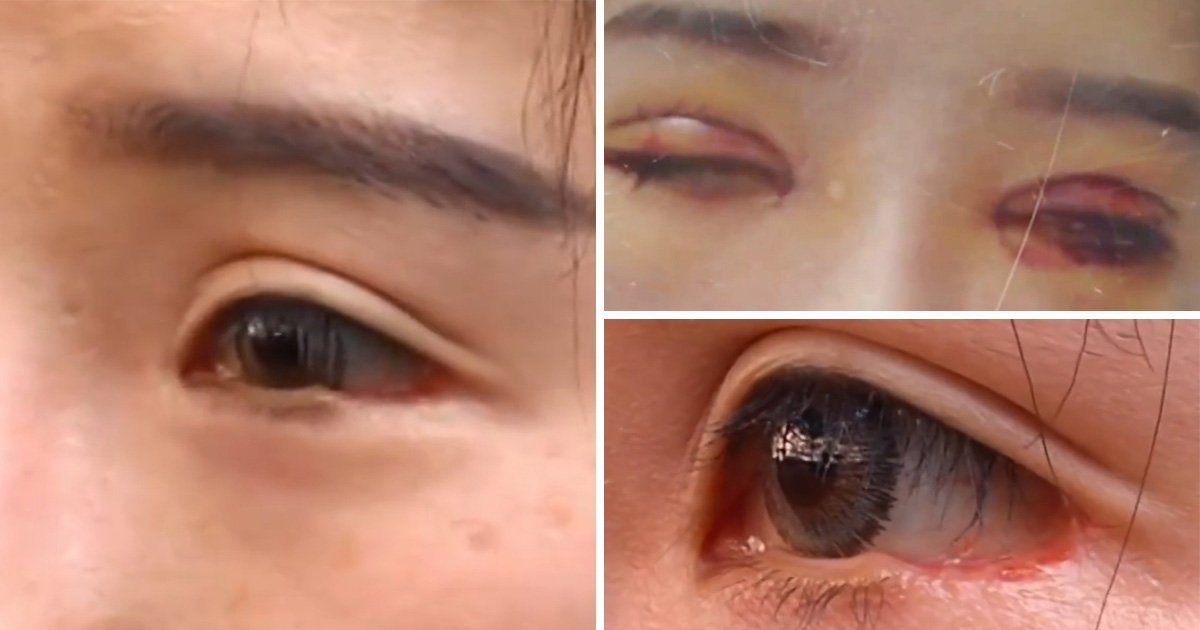 Woman's eyelid sliced off by doctor during plastic surgery