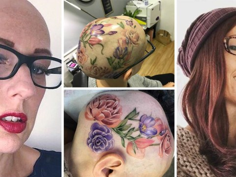 Woman with alopecia gets a tattoo covering her whole head to help her embrace being bald