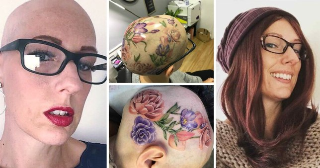 Woman with alopecia gets a tattoo covering her whole head to