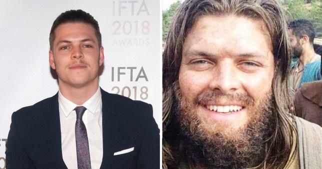Vikings star Alex Hogh Anderson rocks huge beard as Ivar The Boneless in 'leaked' season six picture