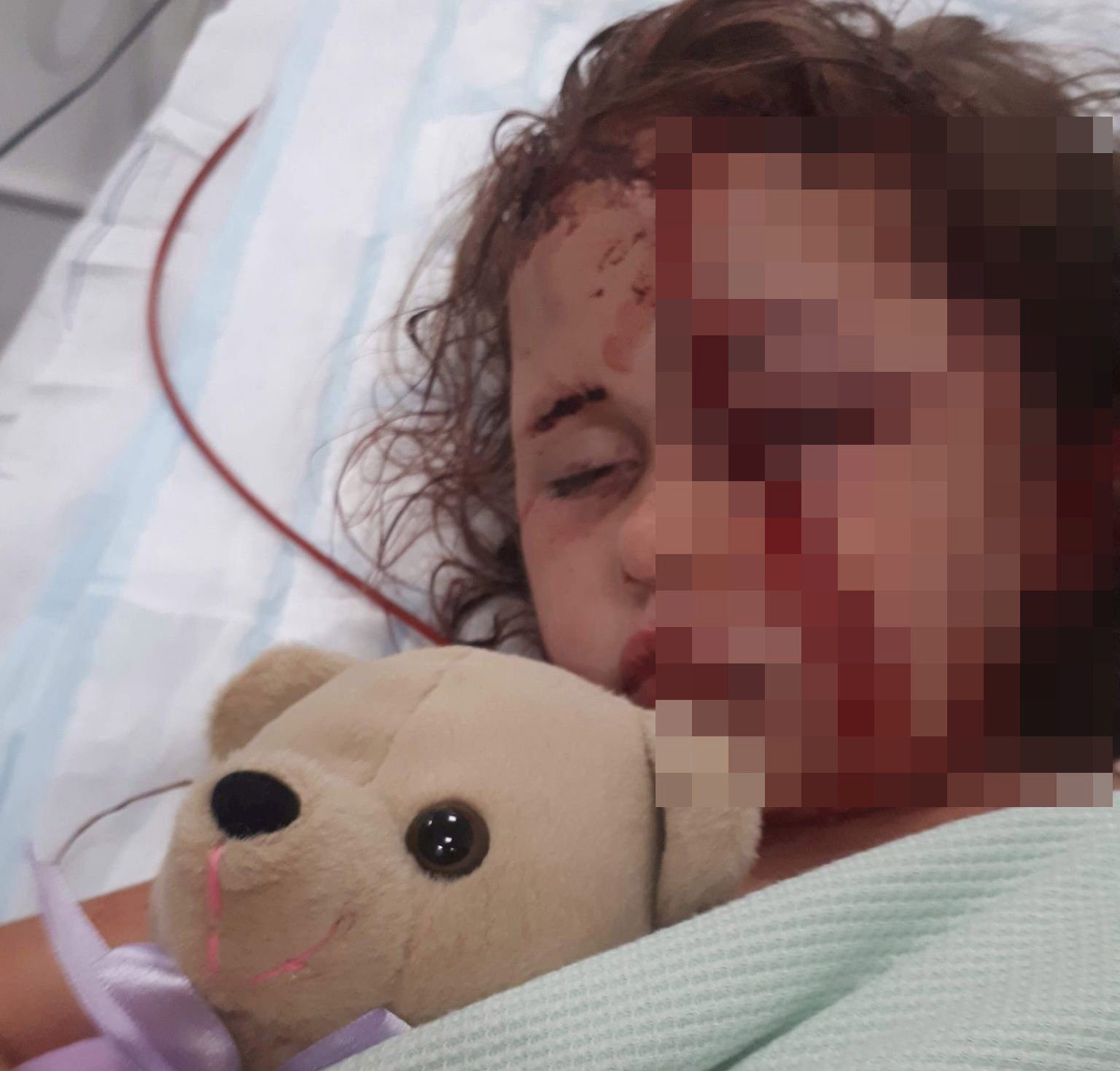 Tillie after she was attacked by a dog. See SWNS story SWLEattack - A judge has slammed the owner of a devil dog which almost mauled a five-year-old girl to death as she played outside -- after she claimed it was the victim's FAULT. 4-year-old Tillie Vasey had 9 hours of surgery after the horrific dog attack in Preston in July 2018