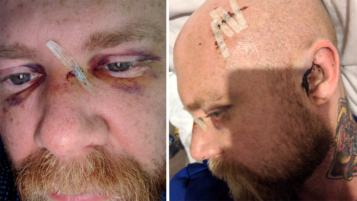 Man left with torn ear and bleed on brain after homophobic attack in Gay club