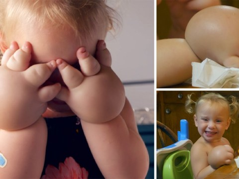 Girl, 2, gets liposuction to reduce swollen hands caused by rare condition