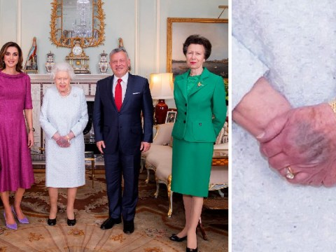 Royal photo sparks concern after Queen's hand appears 'severely bruised'