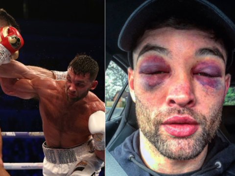 Scott Fitzgerald sports two huge shiners after victory over Anthony Fowler
